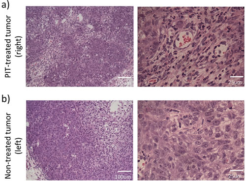 Histological analyses of the NIR-PIT-treated