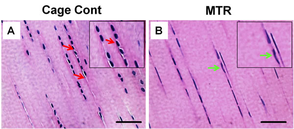 The effect of MTR on the structure and cellularity of aging rat patellar tendon.