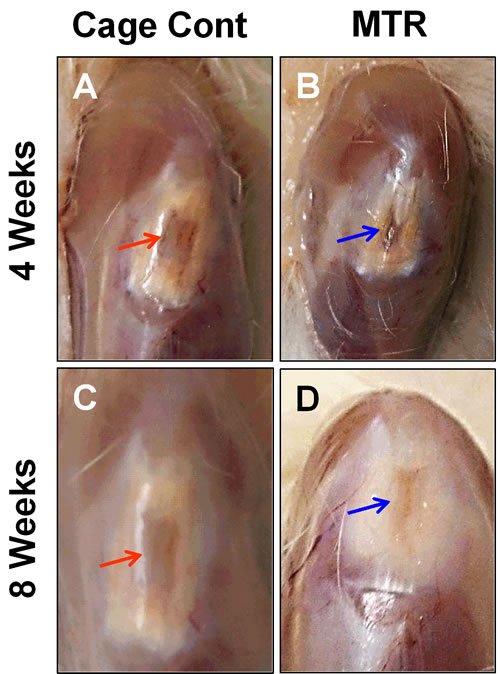 The effect of MTR on wound healing in aging rat patellar tendon.