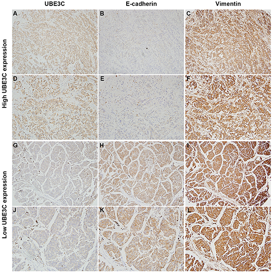 Correlation between UBE3C, E-cadherin and vimentin expression in melanoma tissues