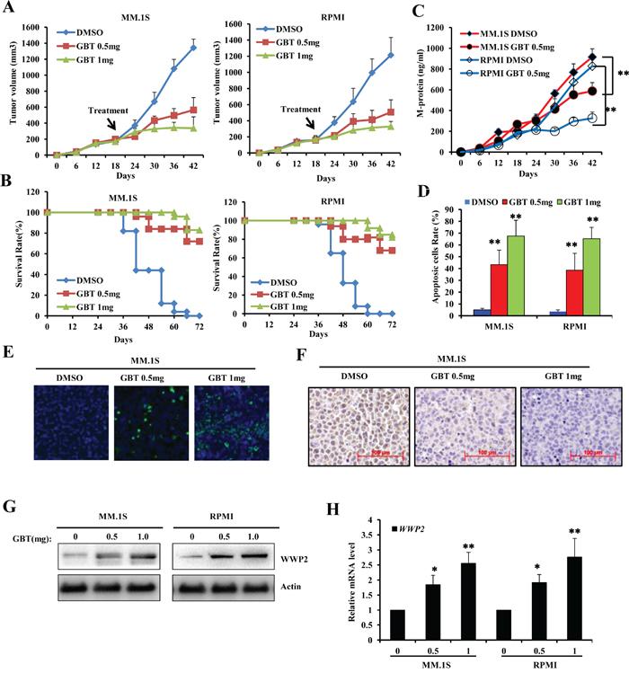 GBT suppresses MM xenograft tumors in mice model.