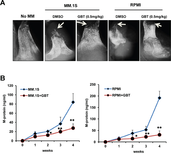 GBT alleviates bone destruction induced by MM cells in a SCID-hu mice model.
