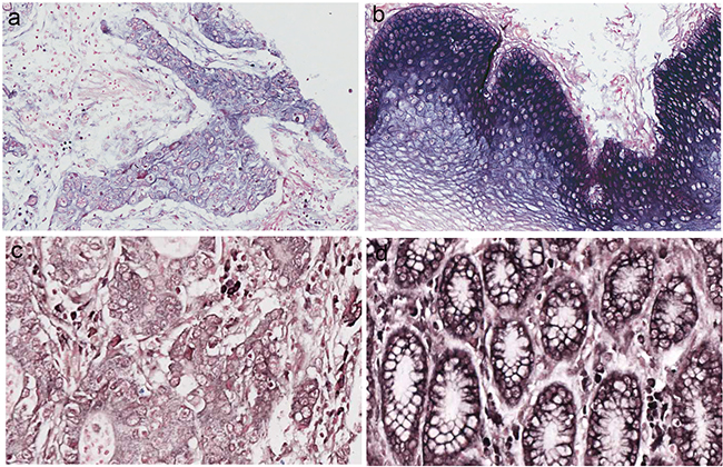 miRNA-486–5p levels were stained by in situ hybridization in esophageal squamous cell carcinomas (ESCC) and gastric carcinoma (GC).