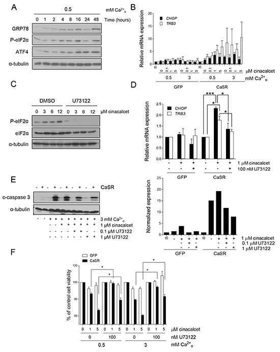 Apoptosis upon cinacalcet exposure is triggered by phospholipase C activation and ER stress.