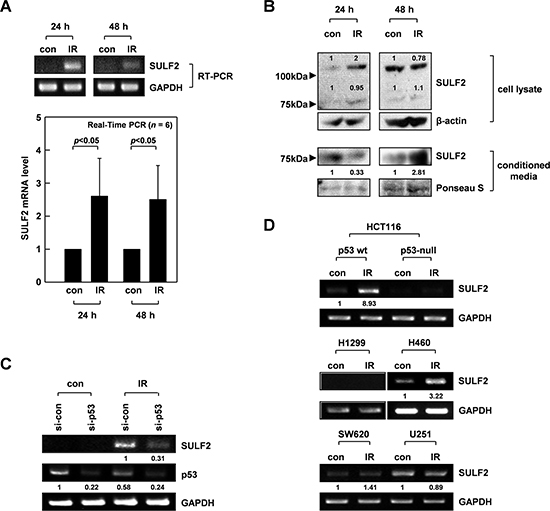 IR induces SULF2 expression via p53.