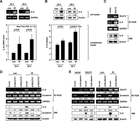 SULF2 mediates IR-induced IL-6 expression via β-catenin.