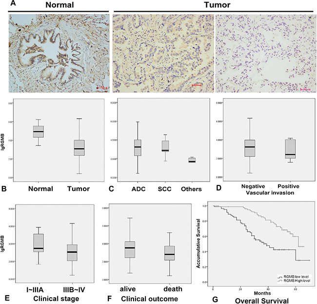RGMB expression and association with lung cancer progression.