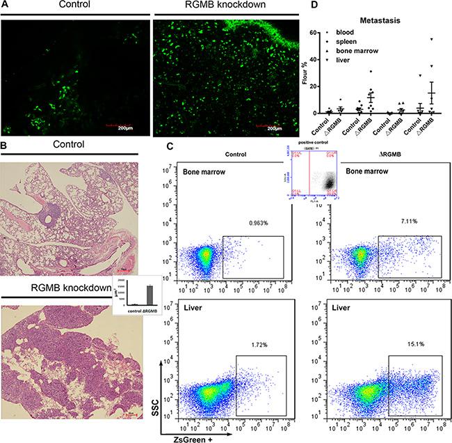 RGMB gene manipulation alters lung cancer metastasis in vivo.