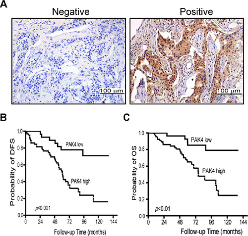 High-expression of PAK4 is associated with poor prognosis in breast cancer patients.