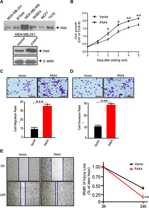 Overexpression of PAK4 increases the proliferation, migration, and invasion of breast cancer cells.