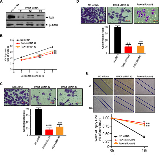 Knock-down of PAK4 by siRNAs suppresses cell proliferation, migration, and invasion of MDA-MB-231 cells.