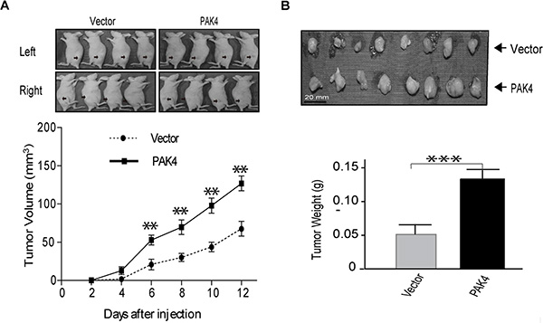 PAK4 promotes MDA-MB-231 breast xenograft tumor formation.