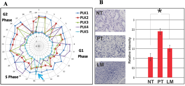 Plk5 mRNA perturbation during cell cycle and its protein expression support that Plk5 is a tumor suppressor.