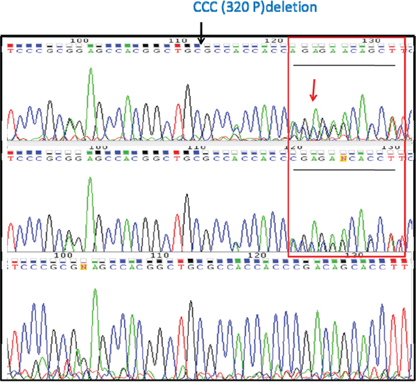 Target sequencing with DNA from CCRCC patients confirms that the Plk5 mutation is metastasis-specific.