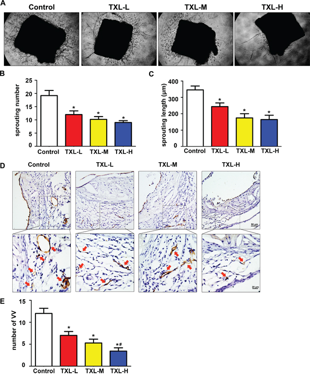 TXL inhibits plaque-associated angiogenesis ex vivo and in vivo.