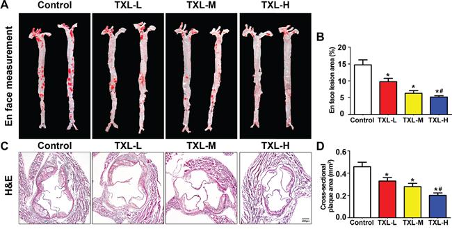 TXL suppresses early atherogenesis in apoE-/- mice.