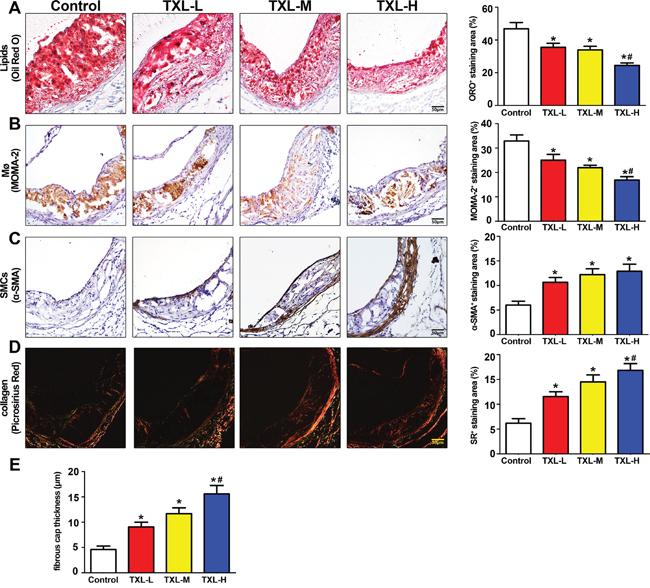 TXL stabilizes atherosclerotic plaque in apoE-/- mice.