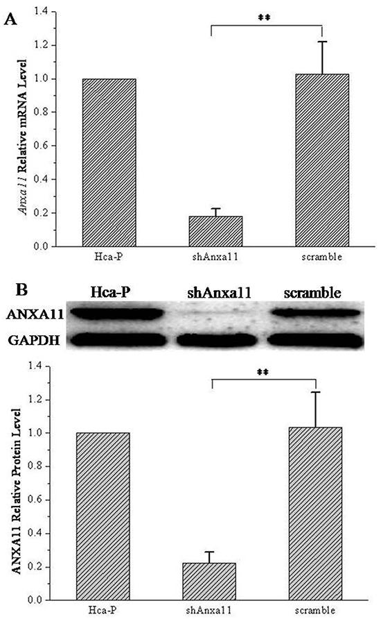 Anxa11 knockdown by RNAi.