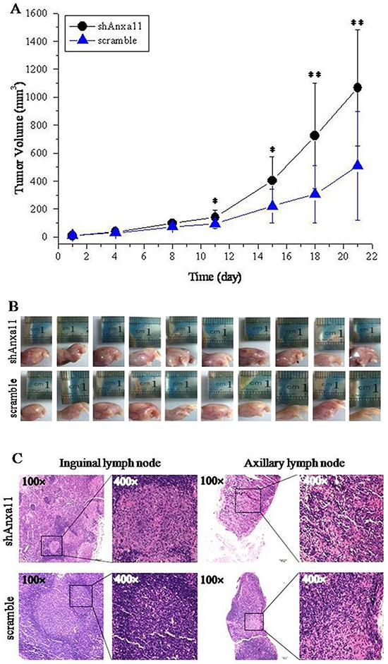 Anxa11 knockdown on tumorigenicity and LNM capacity for Hca-P cells.