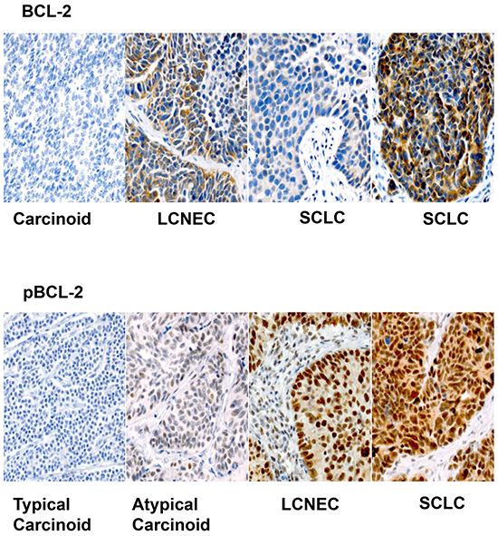 Representative sections (X200) showing variable expression of Bcl-2 across different histologic types of pulmonary neuroendocrine tumors.