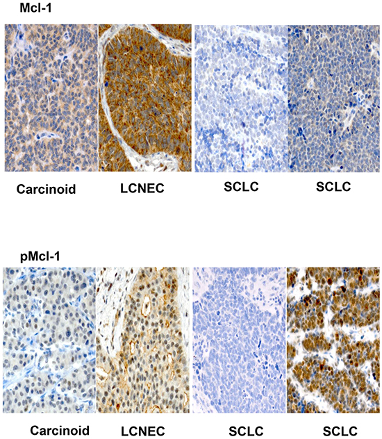 Representative sections (X200) showing variable expression of Mcl-1 and pMcl-1 across various histologic subtypes of pulmonary neuroendocrine tumors.