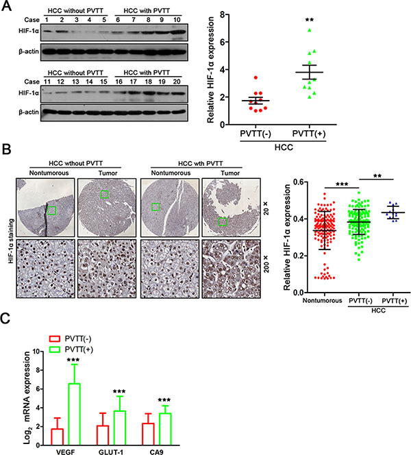 Increased intratumoral hypoxia is associated with PVTT formation in HCC patients.