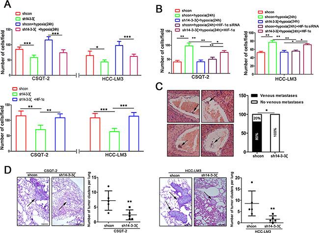 14-3-3ζ regulates the aggressive behavior of tumor cells by the HIF-1α/EMT signal pathway under hypoxic and normoxic conditions.