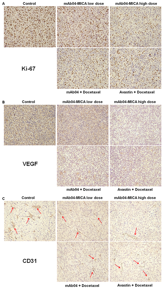 mAb04-MICA reduced markers of proliferation and angiogenesis in MDA-MD-231 xenograft.