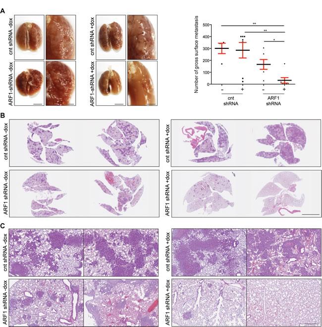 ARF1 depletion impaired breast mouse metastasis.