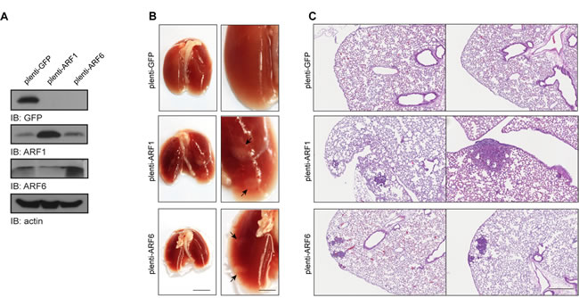 ARF1 and ARF6 overexpression increases metastasis