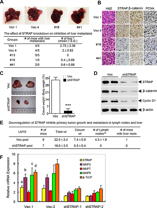 Role of STRAP on CRC metastasis in splenic injection and orthotopic models.