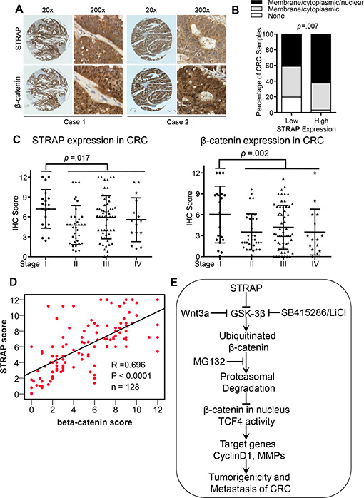 Correlation between the expression of STRAP and β-catenin in CRC.