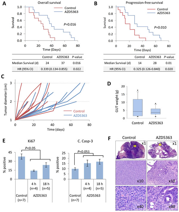 AZD5363 monotherapy delays tumor progression and improves survival in a model of advanced prostate cancer.
