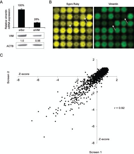 High-throughput RNAi screen to identify vimentin expression regulating siRNAs.