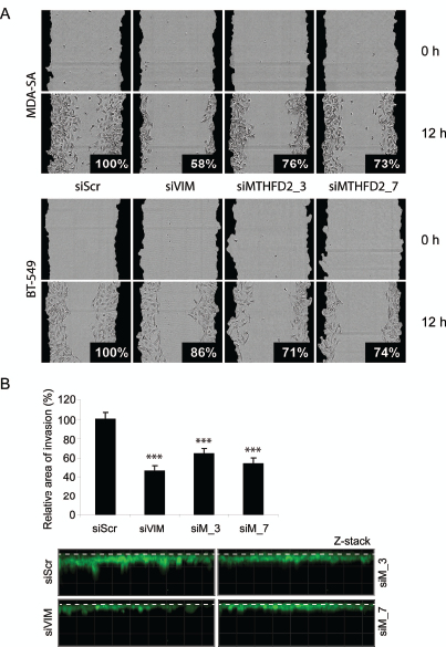 MTHFD2 knockdown reduces breast cancer cell migration and invasion to extracellular matrix.