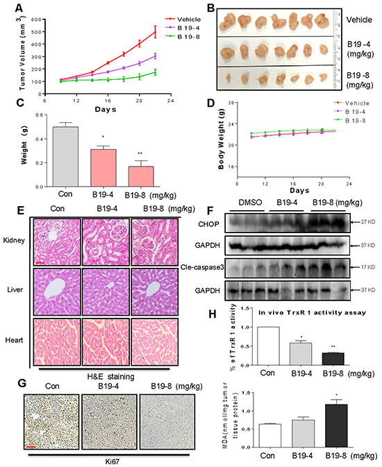 B19 inhibits gastric cancer tumor xenograft growth and induces oxidative injury in vivo.
