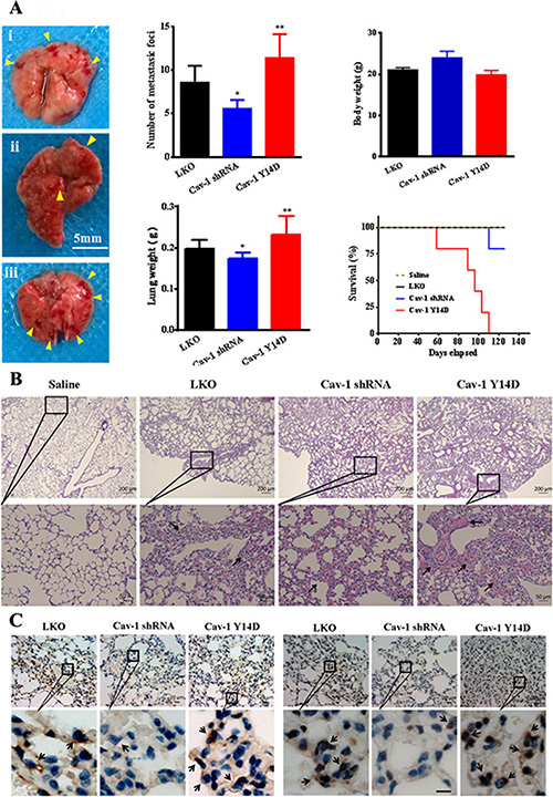 Cav-1 is associated with tumor invasiveness and metastasis in vivo.