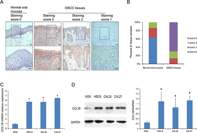 CCL18 protein and mRNA expression in OSCC tissues and cells.