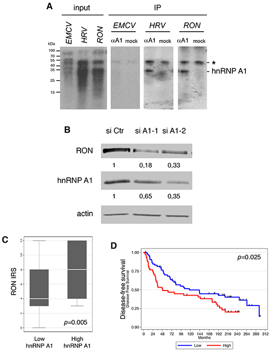 hnRNP A1 binds to the 5′UTR of the RON mRNA and increases the expression of RON.
