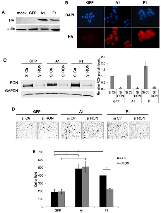 The cytoplasmic mutant of hnRNP A1 increases RON expression and cell migration.