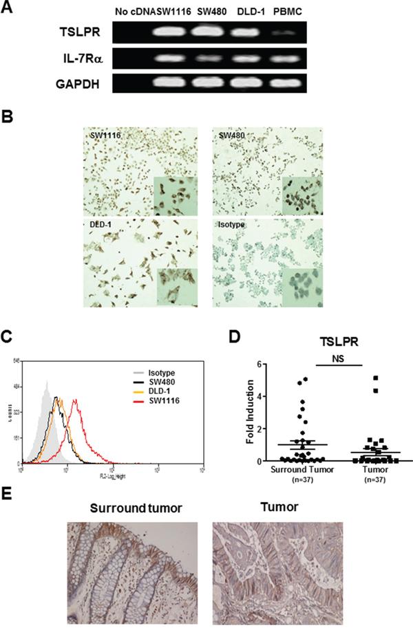 TSLPR expression in colon cancer cells.