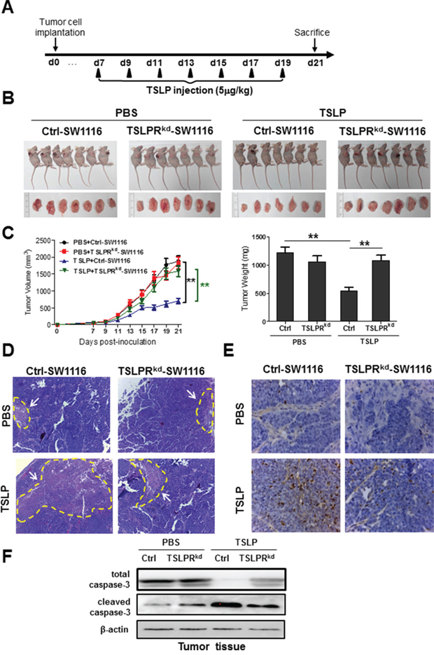 Administration of exogenous TSLP inhibits tumor growth in a xenograft mouse model of human colon cancer.