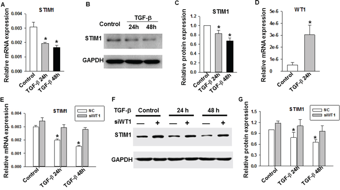 The role of TGF-β on STIM1 and WT1 gene expression in MDA-MB-231 cells.