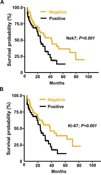 Kaplan-Meier analysis of overall survival in HCC patients according to Nek7 and Ki-67 expression.