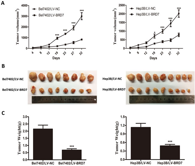 BRD7 suppresses the tumorigenicity of HCC