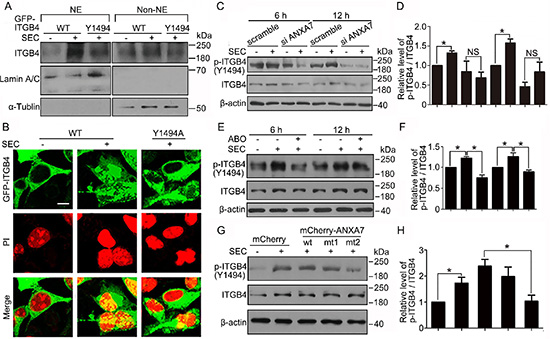 Y1494 phosphorylation of ITGB4 by ANXA7 is responsible for its nuclear translocation.