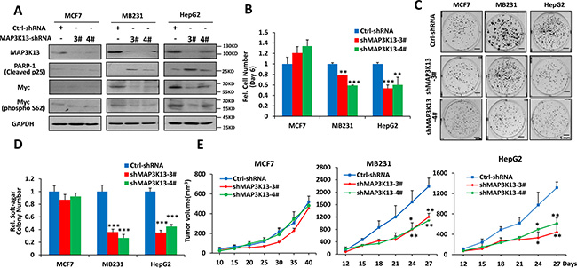 MAP3K13 is necessary for growth, clonogenicity and tumorigenicity of Myc-over-expressing human cancer cells.