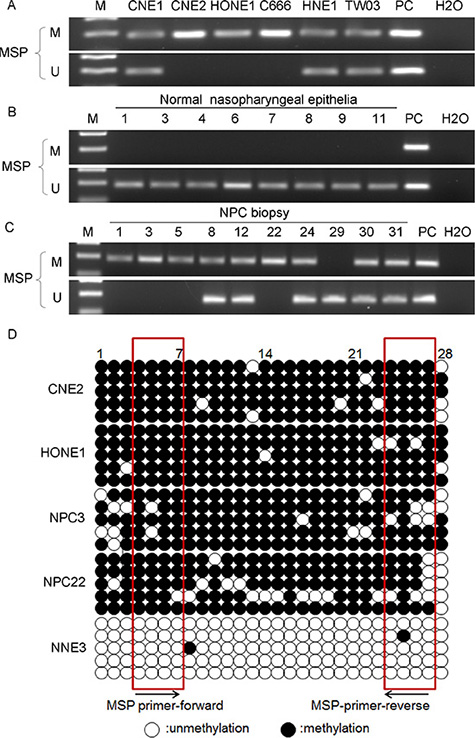 FSTL1 is aberrantly hypermethylated in NPC cell lines and primary tumors.