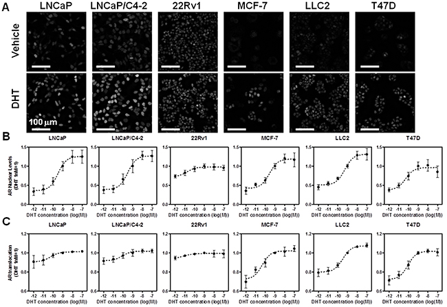High throughput microscopy-based analysis of endogenous AR nuclear level and translocation across prostate and breast cancer cell lines.