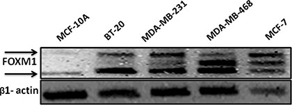 FOXM1 protein is overexpressed in TNBC cells.